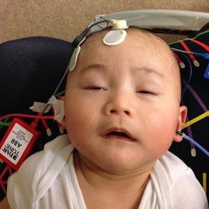 Kinan waktu tes pendengaran di KNO (THT) rumah sakit